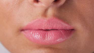 עיבוי שפתיים - הזרקת בוטוקס