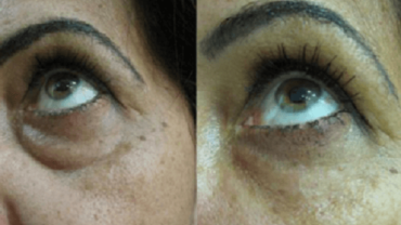 מילוי שקעי עיניים - טיפול בחומצה היאלורונית - 4