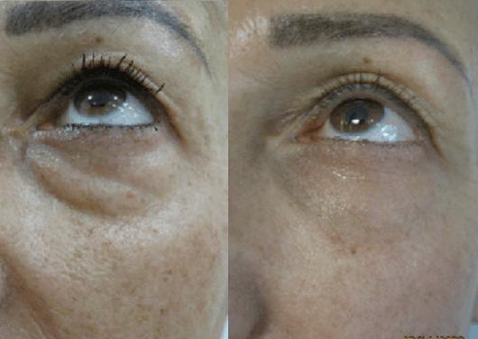 מילוי שקעי עיניים - טיפול בחומצה היאלורונית - 1