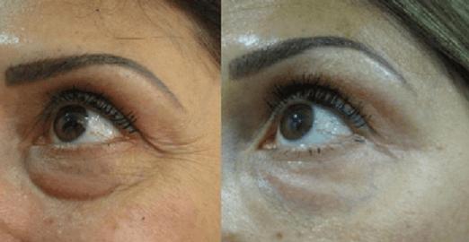 מילוי שקעי עיניים - טיפול בחומצה היאלורונית - 3