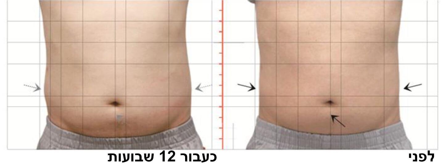 טיפול המסת שומן בקור 6