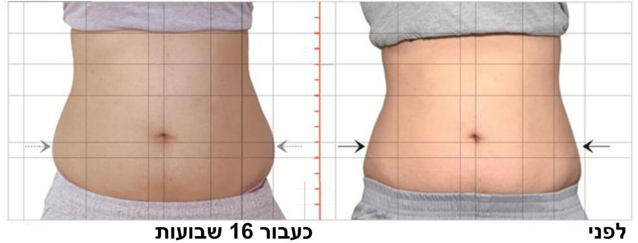 טיפול המסת שומן בקור 8