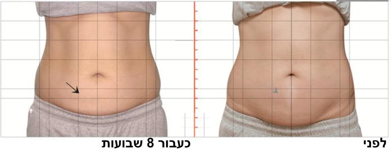 טיפול המסת שומן בקור 2