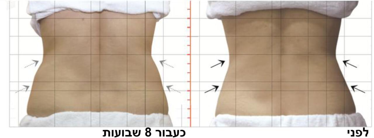 טיפול המסת שומן בקור 3
