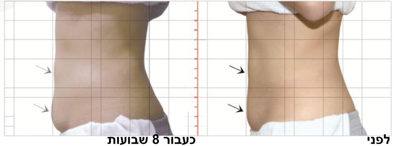 טיפול המסת שומן בקור 4