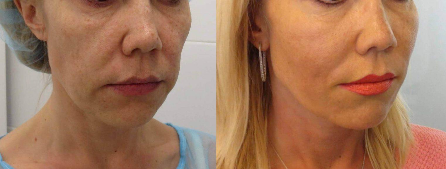 מתיחת פנים עם חוטי סילואט נמסים - 4