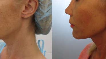 מתיחת פנים עם חוטי סילואט נמסים - 5