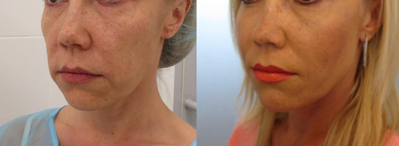 מתיחת פנים עם חוטי סילואט נמסים - 6