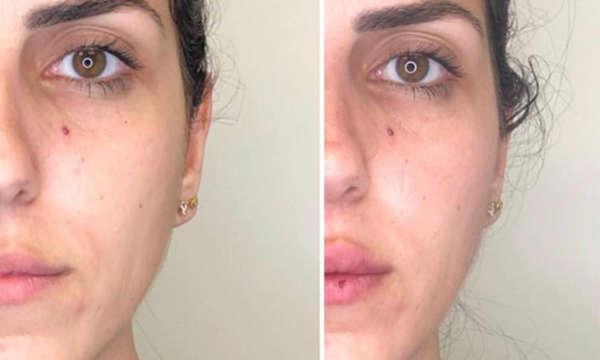 """לפני ואחרי - עידון הפנים ע""""י פיסול עצמות לחייםו"""