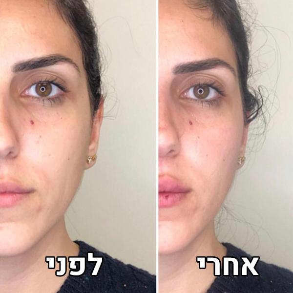 עידון הפנים ועצמות לחיים