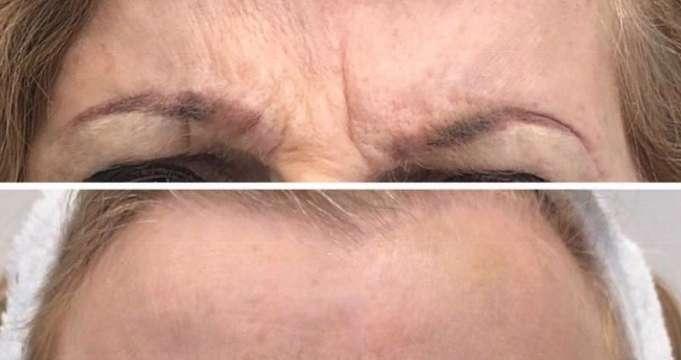 תמונות לפני ואחרי - קמטים במצח