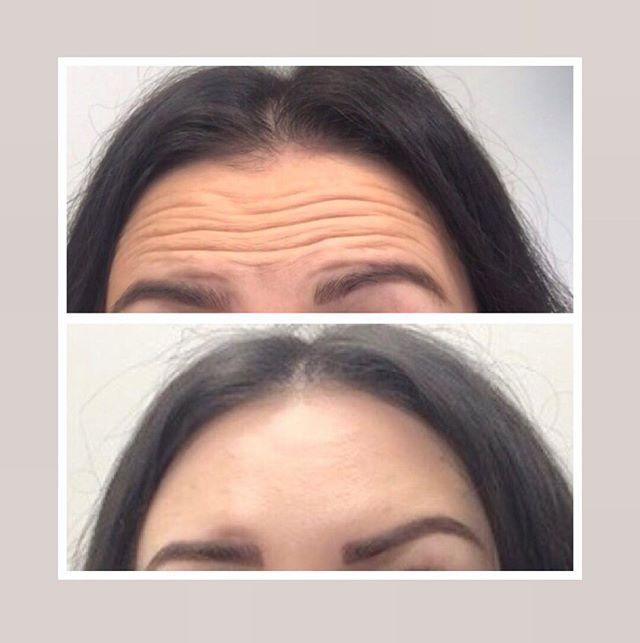 תמונות לפני ואחרי - קמטים מצח וגבות