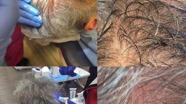 טיפול prp לשיער - mdcare