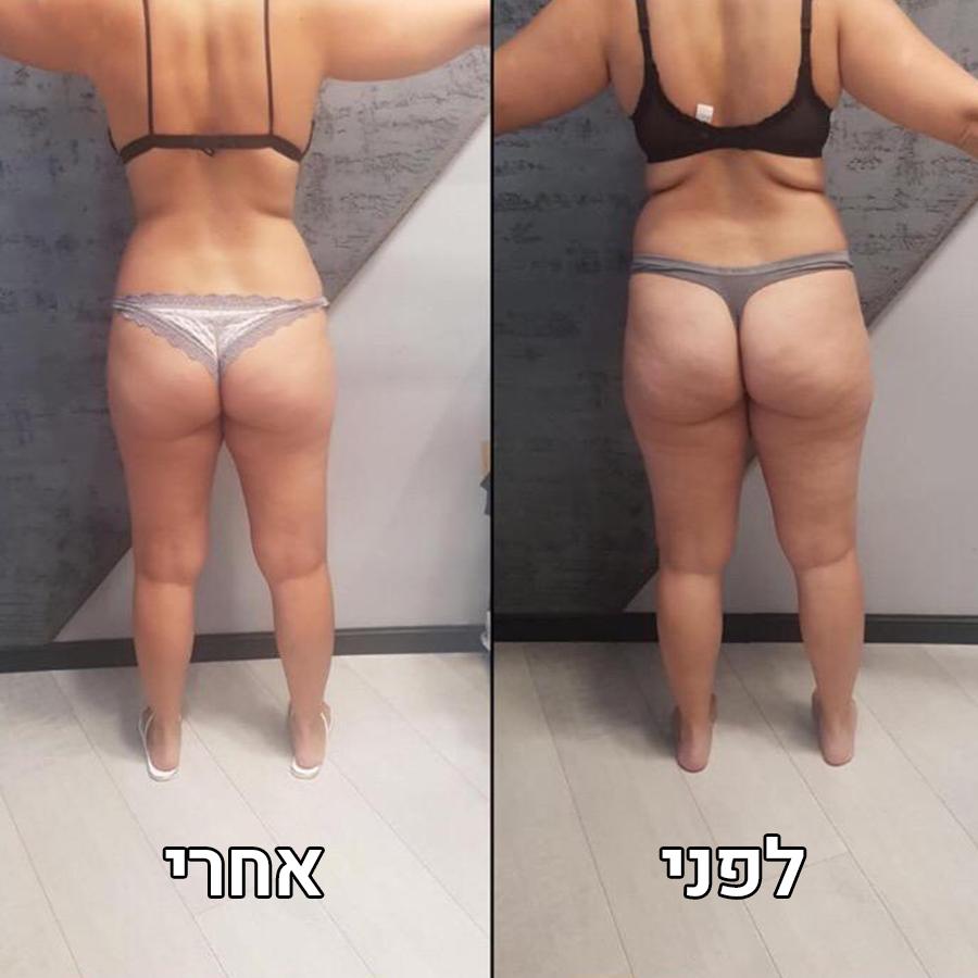 אייס 21 טיפול המסת שומן בקור