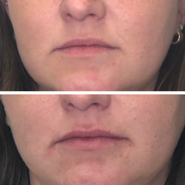 עיצוב שפתיים - לפני ואחרי