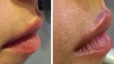 עיבוי שפתיים - לפני ואחרי