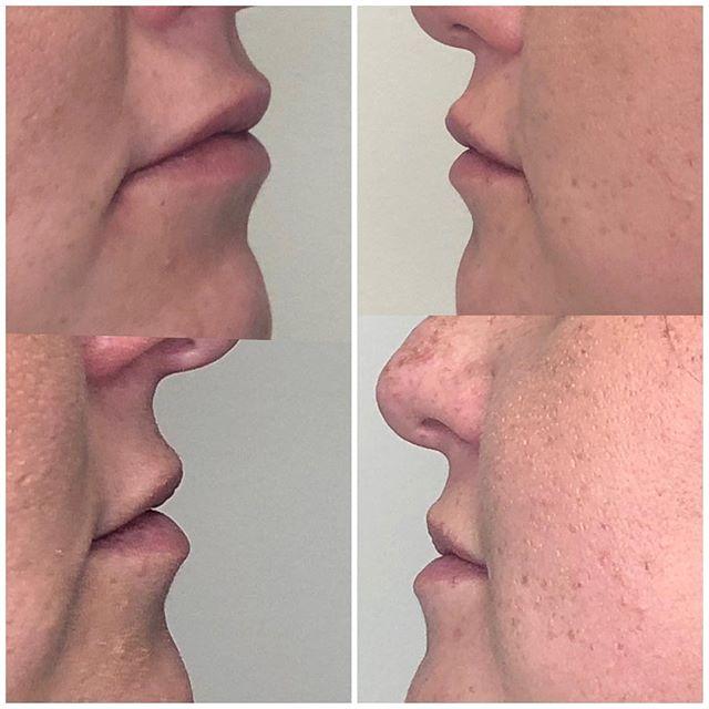 תמונות לפני ואחרי - פיסול שפתיים