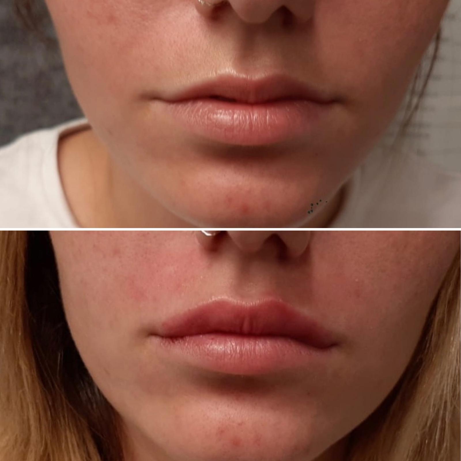 לפני ואחרי עיבוי שפתיים