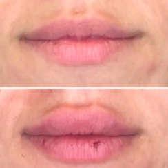 הגדלת שפתיים