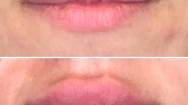 לפני ואחרי מילוי שפתיים