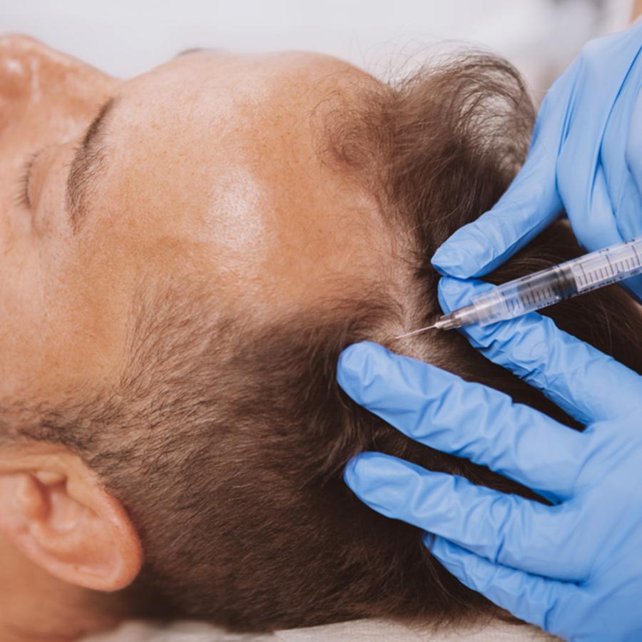 טיפול PRP לחיזוק שורשי השיער לגבר