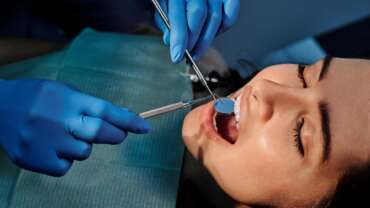 הסיבות בגללן חשוב ללכת לביקורת אצל רופא השיניים שלכם