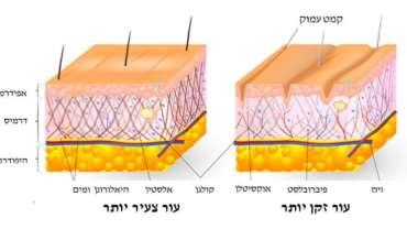 טיפולי מזותרפיה לפנים