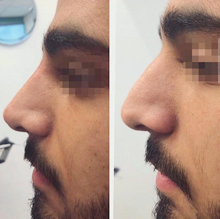 תמונות לפני ואחרי - תיקון אף